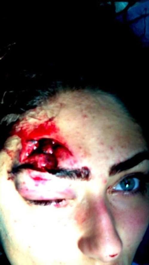 Jeune femme victime de la brutalité policière