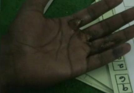 La main brûlée d'un demandeur d'asile (Capture d'&eacute ; cran d'ABC News)
